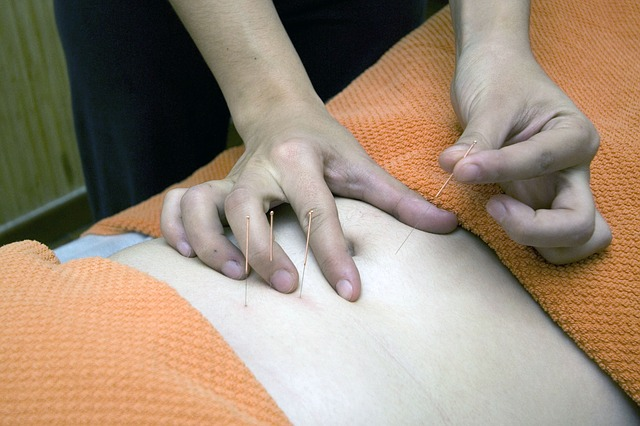 A person receiving acupuncture treatment